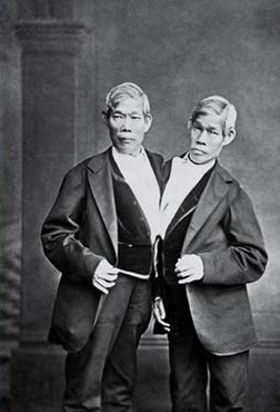 Siamese Twins sideshow performers